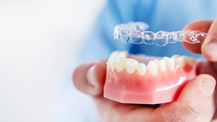 Ortodonzia invisibile: sorridi senza pensieri