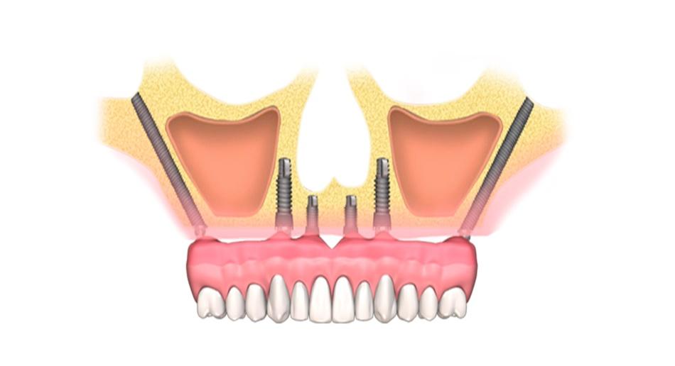 Implantologia-zigomatica