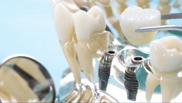 Implantologia e Chirurgia Maxillo Facciale